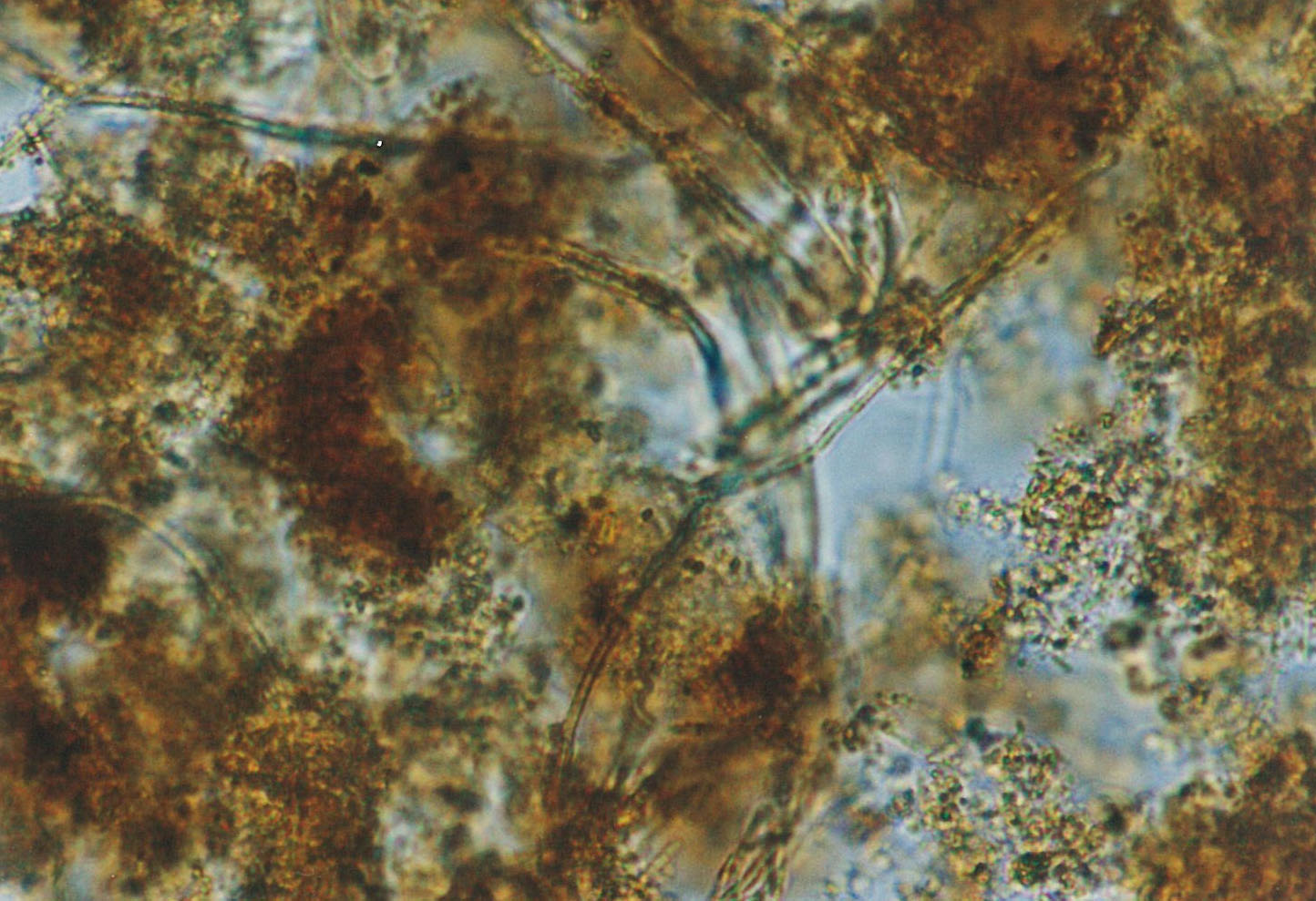 mixed iron-related biofilm